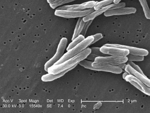 Tuberculosis bacteria is seen under the high magnification of a scanning electron microscope in this image made available by the U.S. Centers for Disease Control and Prevention.